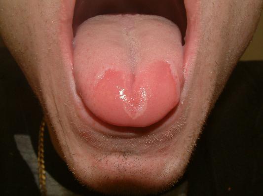Sore Red Tongue1