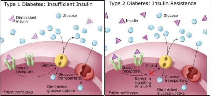 What Does Metformin Do For Type 2 Diabetes