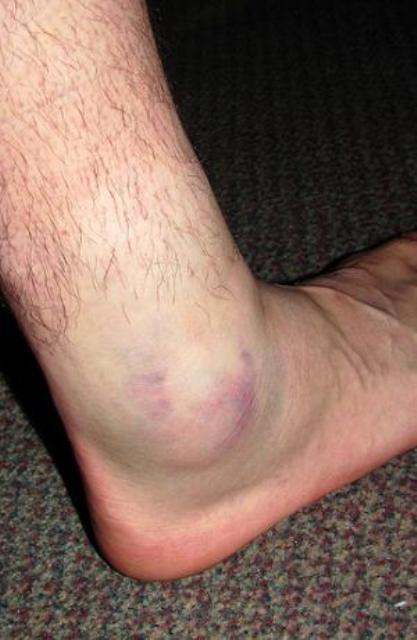 Swollen Feet - Causes, Symptoms ... - Diseases Pictures