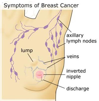 Breast Cancer Causes/Risks: Genetics, Hormones, Diet,