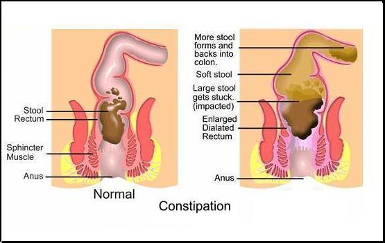 Anal and constipation