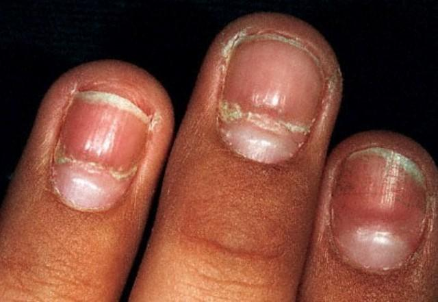 Fingernails and Thyroid Disease http://www.whatcausesthis.com/what-causes-fingernail-ridges/