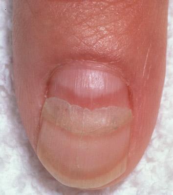 fingernail ridges2