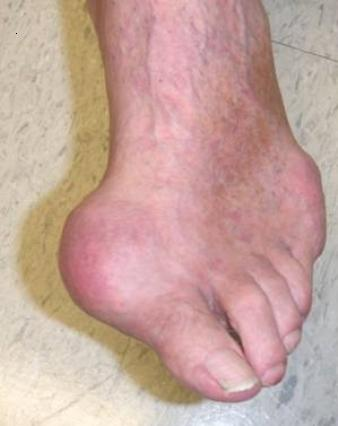 cure gout now review vegetables to remove uric acid does too much uric acid cause leg cramps