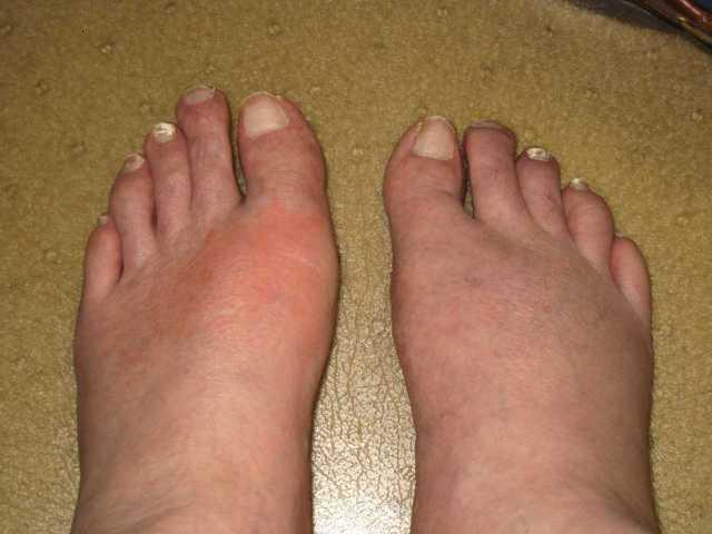 Over The Counter Medication For Gout Arthritis