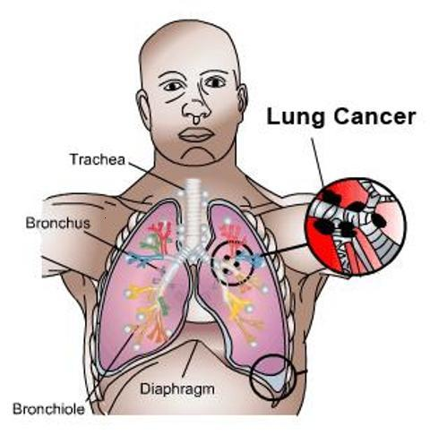 characteristics and treatment of the lung cancer