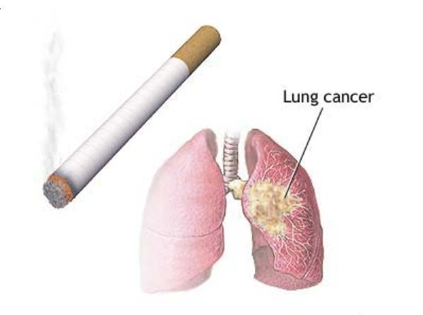 What causes lung cancer? – What causes this?