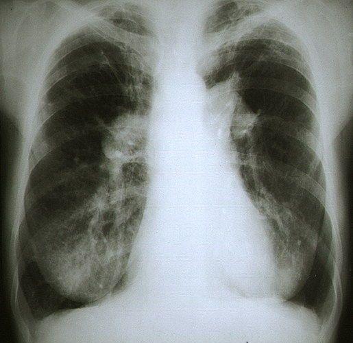 pulmonary hypertension2